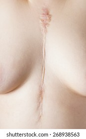 female chest with scar on sternum after cardiac surgery