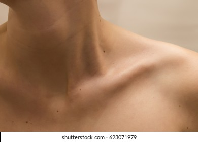 Female clavicles and neck with moles on the skin