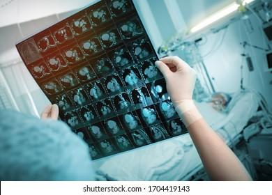 Ein Arzt untersucht sorgfältig einen CT-Scan vor dem Hintergrund eines Patienten, der im Bett in der Notaufnahme liegt.