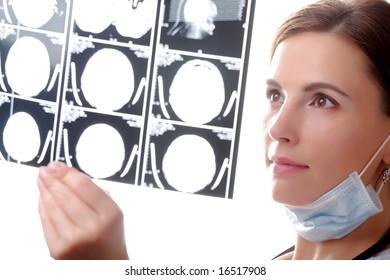 Female doctor examining a brain cat scan