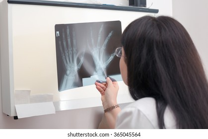 Female doctor examining an x-ray. Selective focus