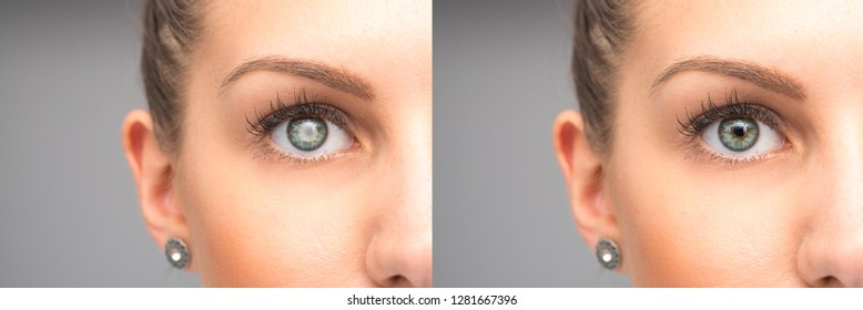 Female eye before and after cataract removal