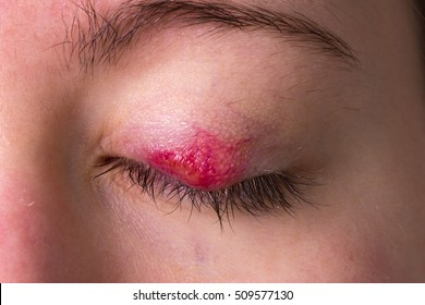 Female eye with chalazion