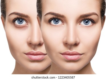 Female eyes with bruises under eyes before and after cosmetic treatment. Over white background.