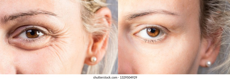 Female eyes with and without eye bag before and after cosmetic t