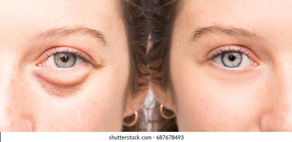 Female face before and after blepharoplsty with and without eye bag