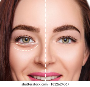 Female face before and after plastic surgery anti wrinkle under eyes.