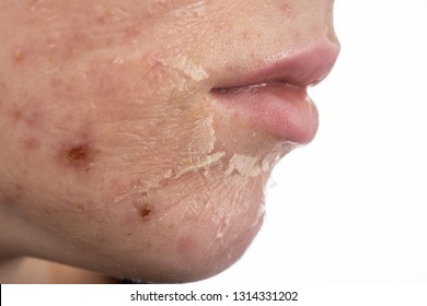 female face with burned skin after chemical peeling, side view