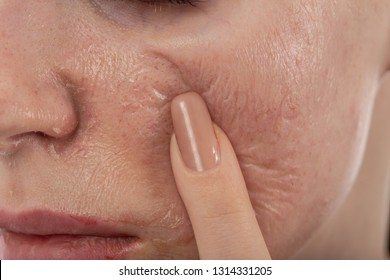 female face with burned skin after chemical peeling