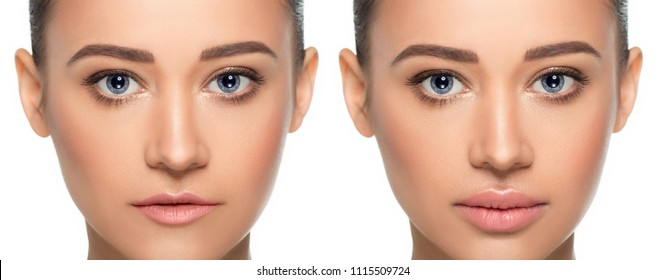 Female face, present before and after lips filler injections. Lip augmentation. Thin ugly lips before botox procedure and beautiful perfect lips after the procedure augmentation.