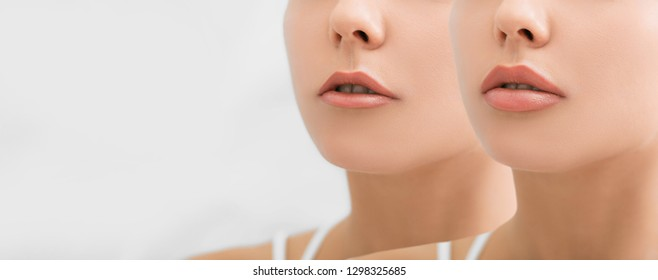 Female face, present before and after lips filler injections. Lip augmentation. beautiful perfect lips after botulinum toxin injection