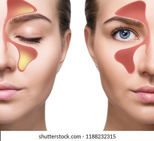 Female face shows nasal sinus with cold over white background. Dust allergies. Flu. People caught cold and allergy.