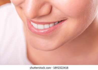Female face with white teeth isolated on white background.
