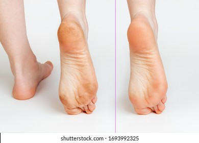 Female feet with corns and calluses and without them, on a white background. Foot close-up. Cosmetology and medicine. Before and after concept