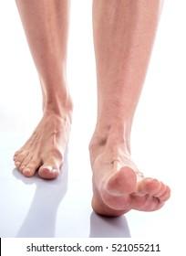 female feet with dry skin on heels