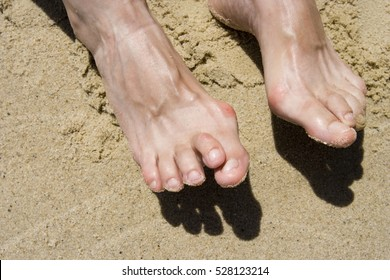 Female feet on a sandy beach with deformities: bunions and hammertoes. Horizontal.