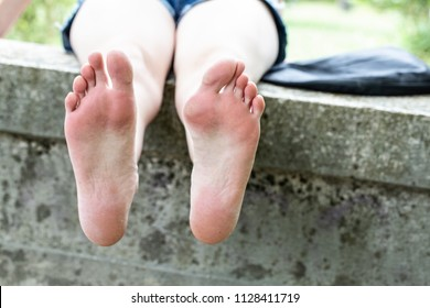 Female foot affected with bunion, hallux valgus