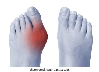 Female foot with bunion on big toe