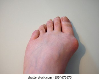 Female Foot showing a Bunion, against a pale background