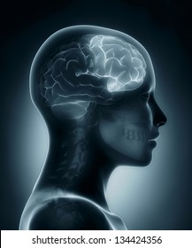 Female Frontal lobe medical x-ray scan
