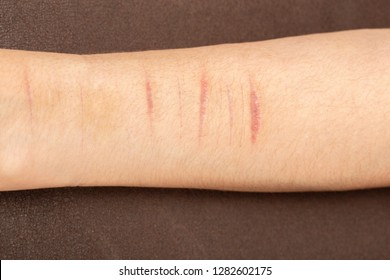 female hand with fresh cuts after suicide attempt