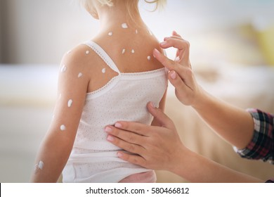 Female hands applying cream on little girl with chicken pox at home