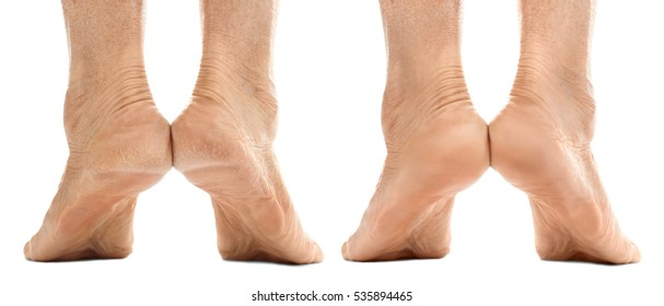 Female heels before and after cosmetic procedure