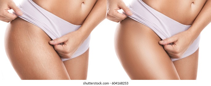 Female hips after stretch mark removal treatment
