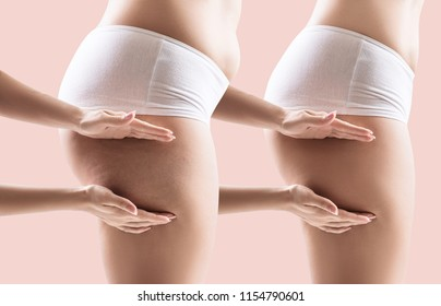 Female hips before and after slimming. Hands shows part with cellulitis on female hips.