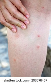 Female leg with mosquito bites, rash and pimples
