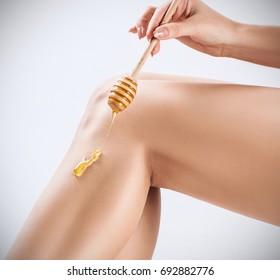 Female legs depilation by honey or sugar pasta.