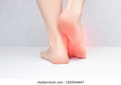 Female legs and feet on a white background that hurt and itch because of fungus, close-up, copy space, dermatitis