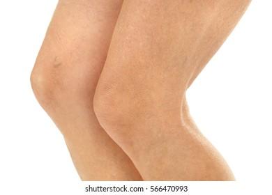 Female legs on white background, closeup
