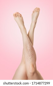 Female legs raised up and crossed with each other, with varicose disease. Pink background. The concept of varicose disease