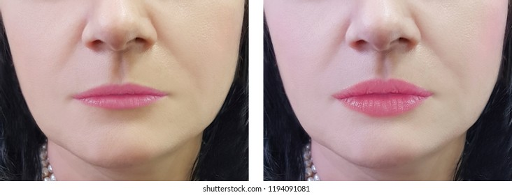female lips increase before and after the procedure
