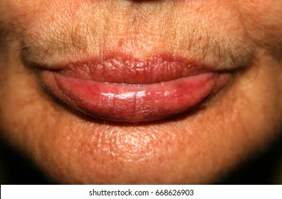 Female lips with a mustache on the upper lip. Hair removal on the face. Depilation..