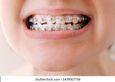 Female mouth with braces close-up, correction of malocclusion