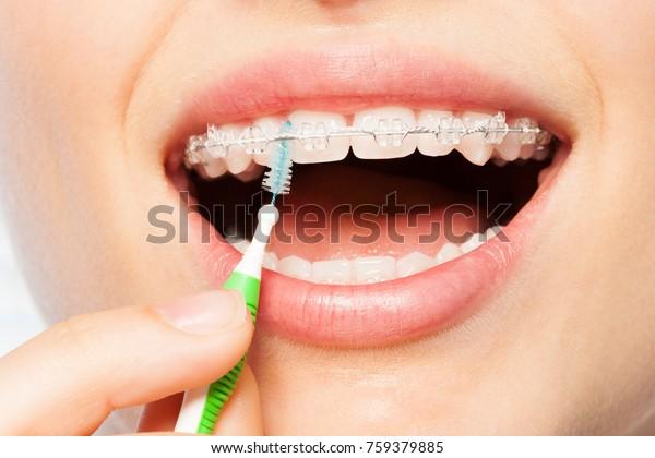ブレースと歯間ブラシを持つ女性の口