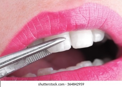 Female mouth examined by a doctor with forceps.