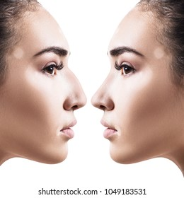 Female nose before and after cosmetic surgery.