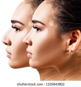 Female nose before and after cosmetic surgery. Woman with vitiligo.
