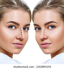 Crooked Nose Images, Stock Photos & Vectors | Shutterstock