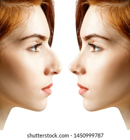 Female nose before and after cosmetic surgery. Over white background.