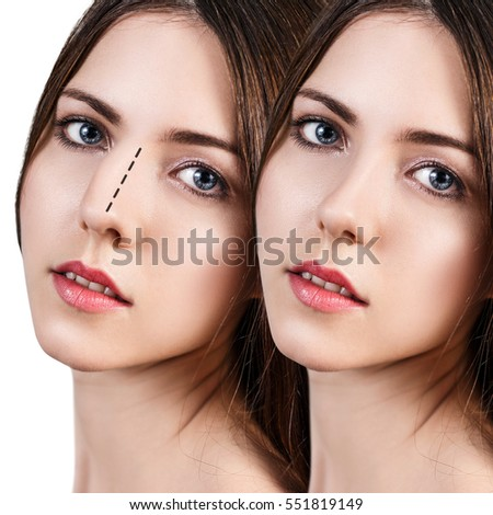 female nose before after cosmetic surgery の写真素材 今すぐ編集