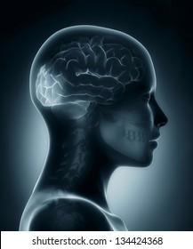 Female Occipital lobe medical x-ray scan