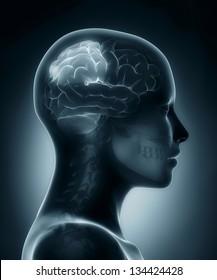 Female Parietal lobe medical x-ray scan