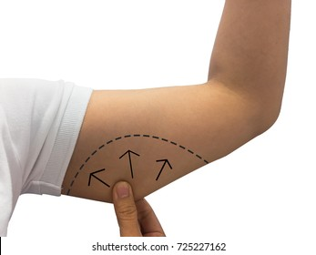 female skin on her upper arm and about to perform liposuction, Tricept , Lose weight and liposuction cellulite removal concept