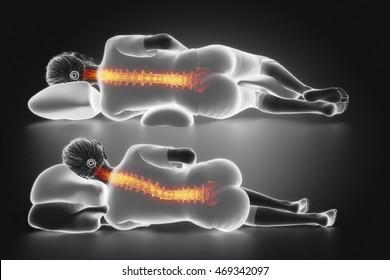 Female sleep posture comparison