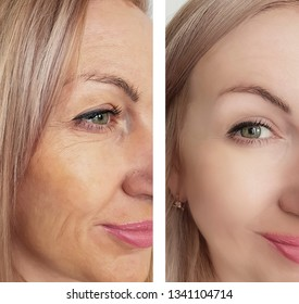 female wrinkles before and after correction procedures