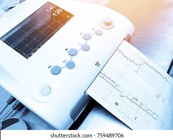 Fetal monitor or non stress test printing the baby's heart beats or electrocardiograph and mother uterine contraction during delivery or birth in delivery or labor room at hospital. Medical concept.